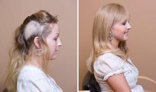 Alopecia photo 2 1 - Alopecia