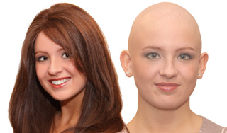 Alopecia photo 4 1 - Home