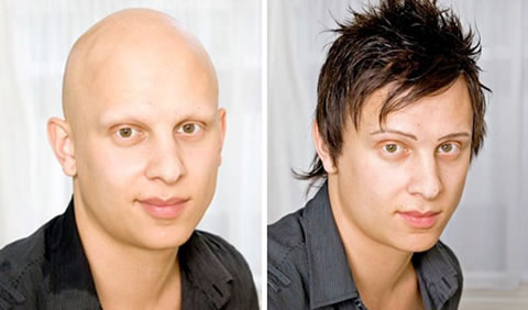 Alopecia brisbane natural hair loss solutions hair loss treatment for men pmusecretfo Gallery