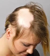 alopecia spot - Alopecia