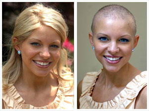cancer wigs 1 - Cancer & Hair Loss Options