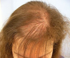 female Hair Loss 3 300x247 - What Causes Hair Loss in Women? What Natural Treatments are Recommended?