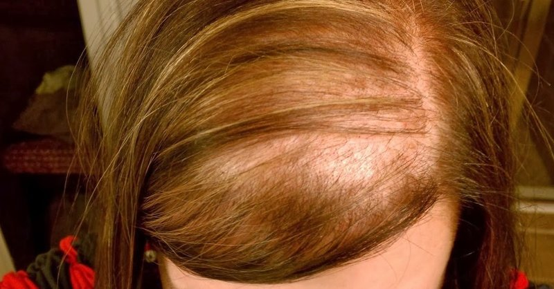 Woman Hair Loss1