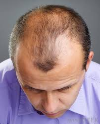 male hair thinning 10 - Male & Female Hair Loss Solutions