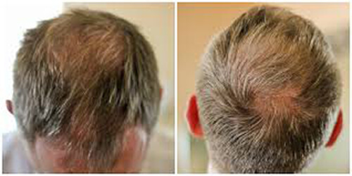 We solve Men & Women's Hair Loss Problems