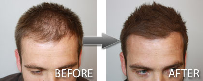 Hair Thickening Treatment Results
