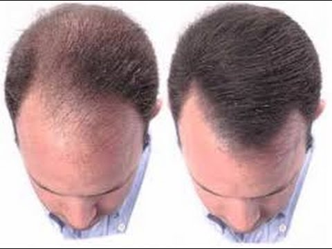 natural hair regrowth 1 - Regrowth Programme