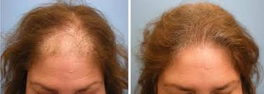 natural hair regrowth 3 - Regrowth Programme