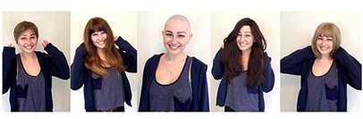 Hair Loss Treatment Brisbane