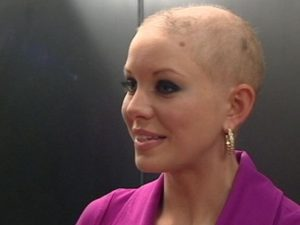 Hair Loss From Chemo