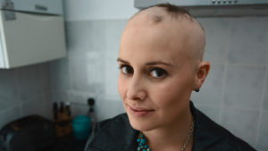 Alopecia Complete Loss Hair