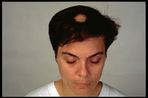 Woman with Alopecia - Patchy Hair Loss