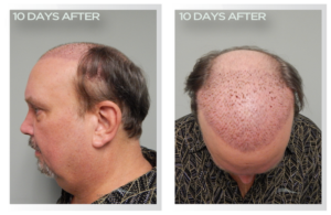 HairTransplant 300x195 - Hair Transplant Brisbane