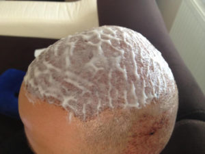 Hair Transplant Brisbane Aftercare