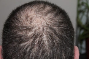 Balding Head 300x200 - Hair Replacement Brisbane