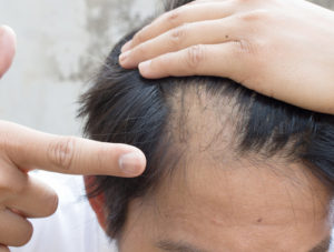 man being treated for pattern baldness in Brisbane