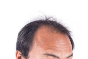 improvement to hairline through natural treatments