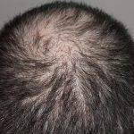 Ultra Natural Hair Loss Treatments