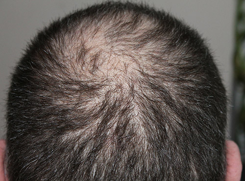 Ultra Natural Hair Loss Treatments In Brisbane That Really Work