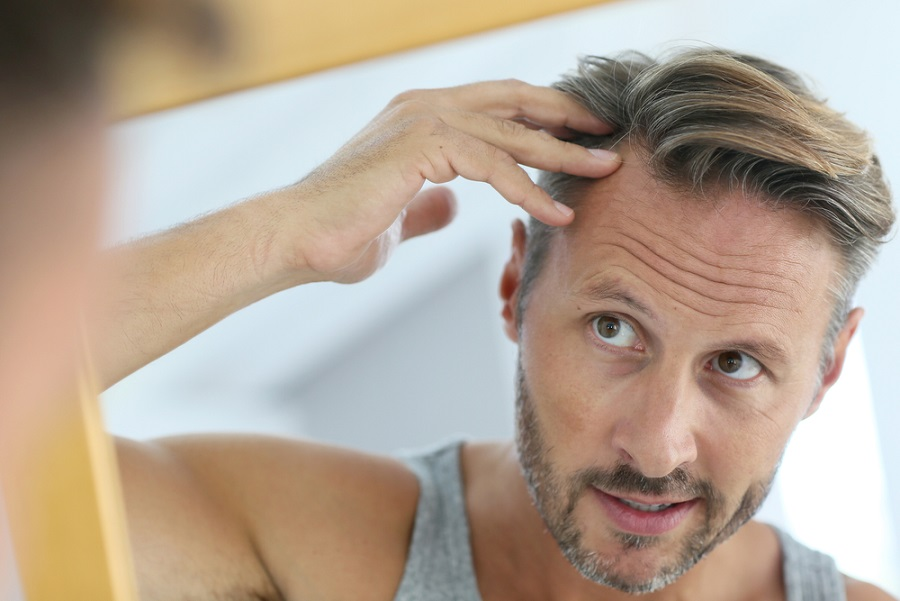 The Cost Of Hair Transplant In Brisbane – What They Don't Tell You