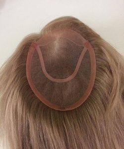 Toupee hair system brisbane hair loss