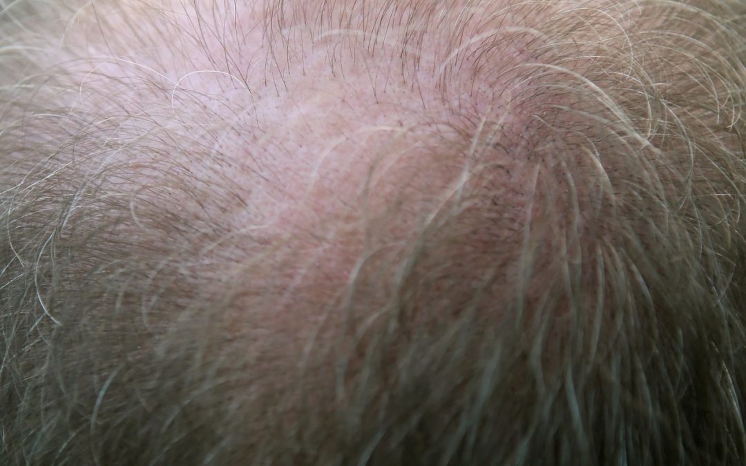 Natural Hair Transplant Alternatives Brisbane