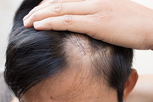 at home hair loss treatments aren't as strong