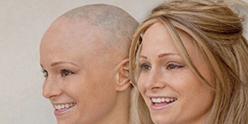 alopecia 248x124 - Home
