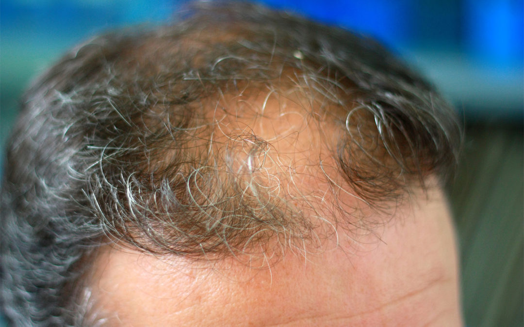 pros and cons of at home hair loss treatment