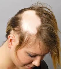 alopecia spot women hair loss - How To Treat Female Hair Loss In Brisbane