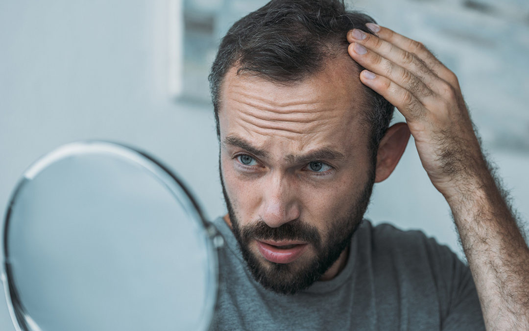 male chemotherapy hair loss