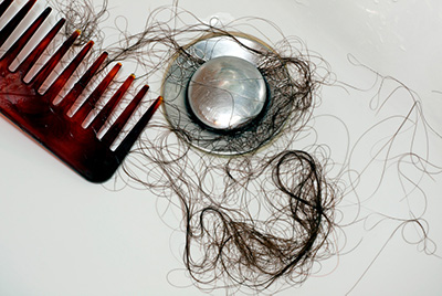blog 6 facts about hairloss400x268 - 6 Facts You May Not Know About Hair Loss