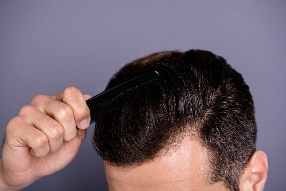 blog hair pieces brisbane FAQ - Your Expert Hair Loss Treatment in Brisbane is Moving!