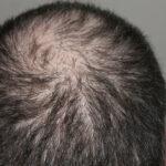 basics of hair loss